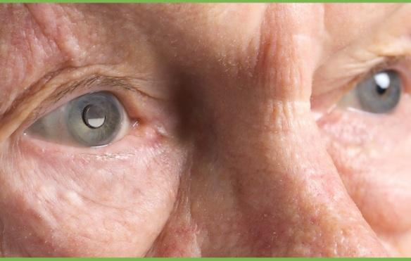 ojo de adulto mayor