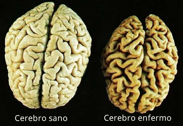cerebro con demencia