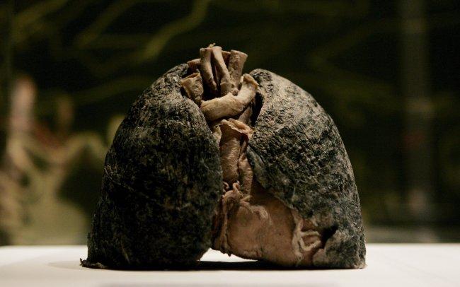 pulmones de fumador